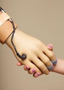 Prosthetic Hand